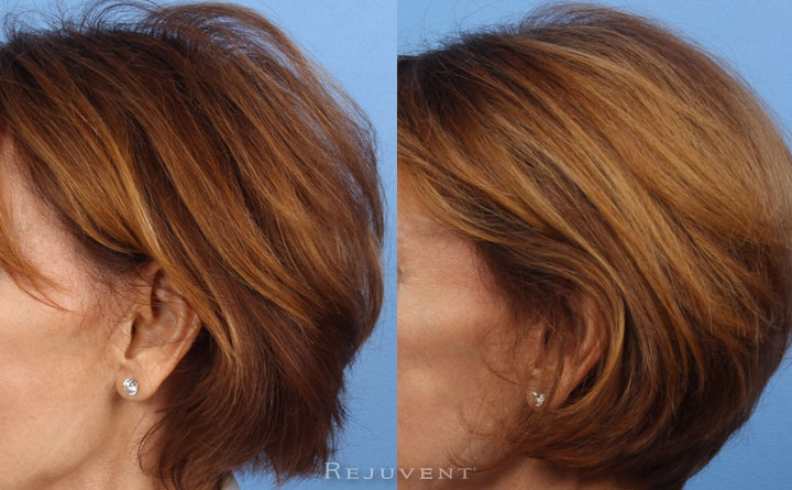 Viviscal Before and After fuller hair