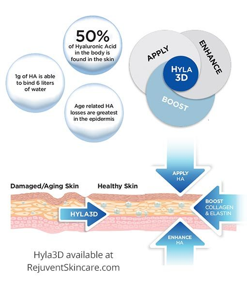 How Hyla3D works