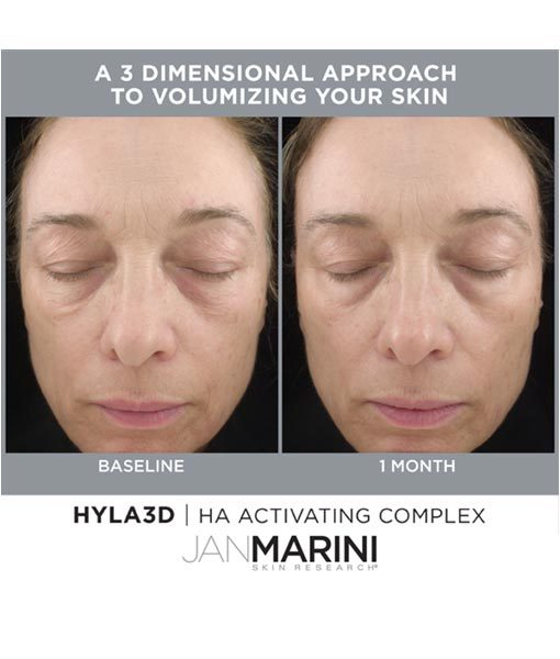 Hyla3D Before and After