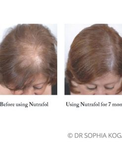Nutrafol Hair Growth Supplements Rejuvent Skincare