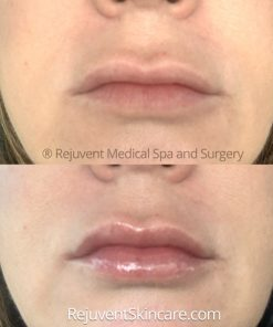 Before and after results of YouthFull Lip Replenisher