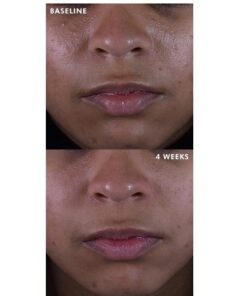 Silymarin before and after results